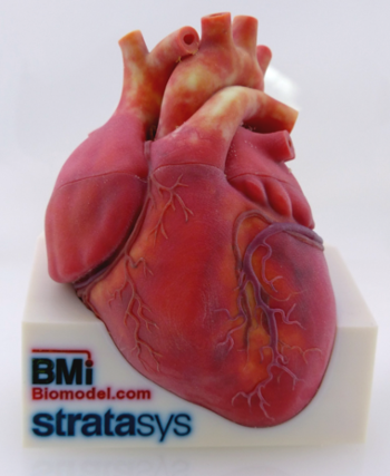 Illustrative 3D-printed model assembly of split heat with colored surface texture for anatomical education and technical demonstration.  Designed by Biomedical Modeling, Inc. (BMI). Manufactured by Stratasys Ltd.
