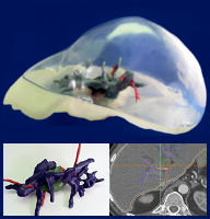 3D printed model assembly of liver with tumor and blood vessels.