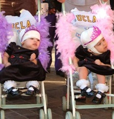 Separated conjoined twins Maria Teresa and Maria de Jesus Quiej Alvarez.