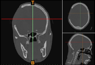 Two-dimensional orthogonal views from medical CT scan image data.