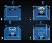 Illustraion depicting stages of biomodel fabrication via stereolithography.
