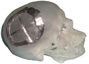 Biomodel of model of injured skull with custom-fit cranial plate.