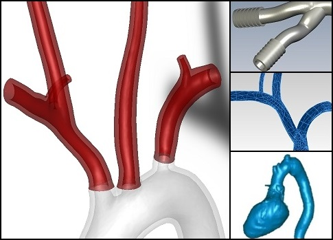 CAD models of human heart and aorta branches (with hose barb additions).